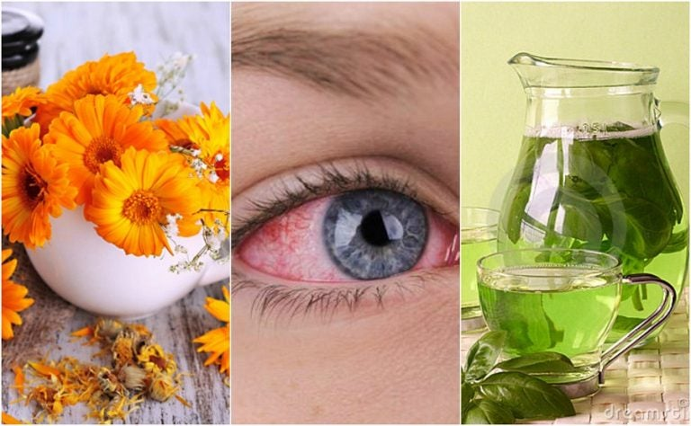 Los 5 mejores remedios para calmar la conjuntivitis naturalmente