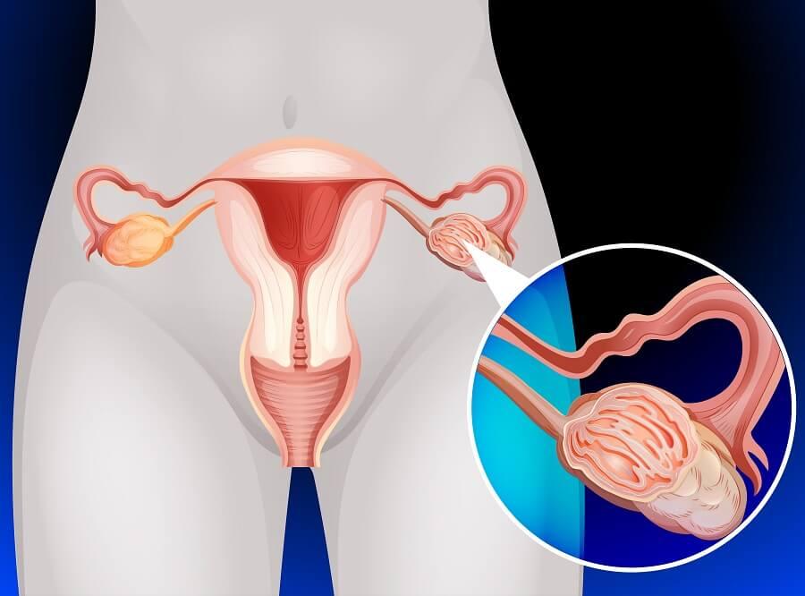 Pinchazos en los ovarios por quistes