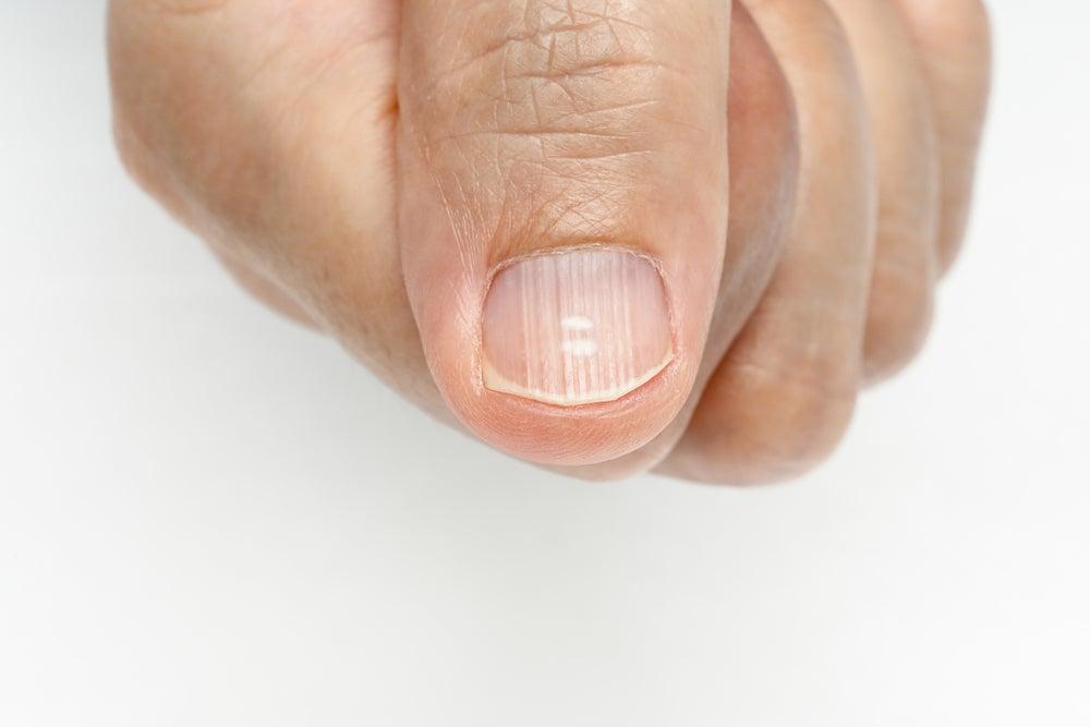 Por qué me salen líneas en las uñas y cómo eliminarlas