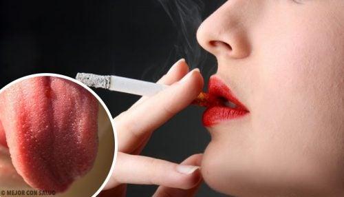 ¿Por qué se produce la inflamación de las papilas gustativas?