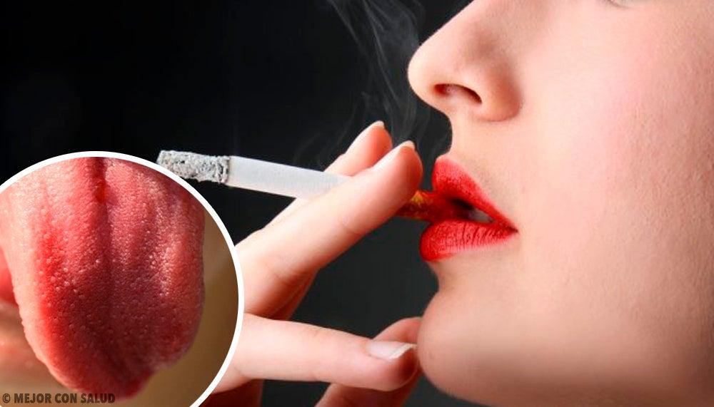 Por qué se produce la inflamación de las papilas gustativas?