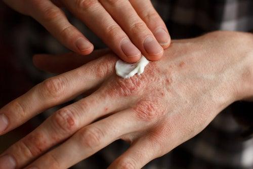 Hombre aplicándose crema en la mano