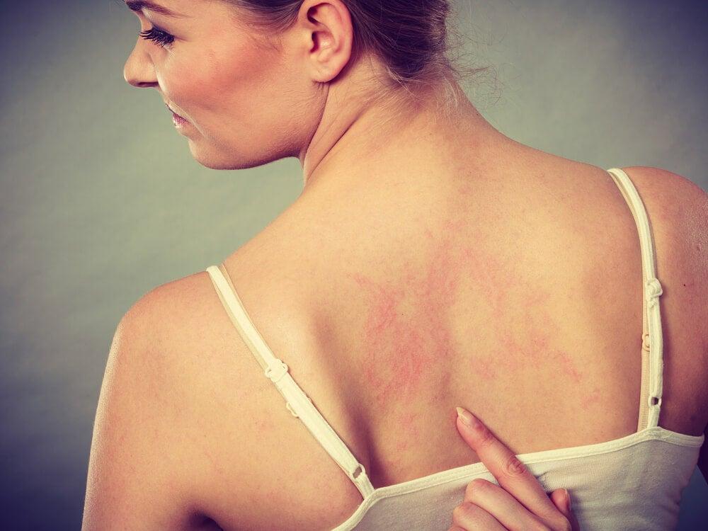 Rayas rojas en la piel