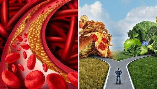 arteriosclerosis medidas de prevencion