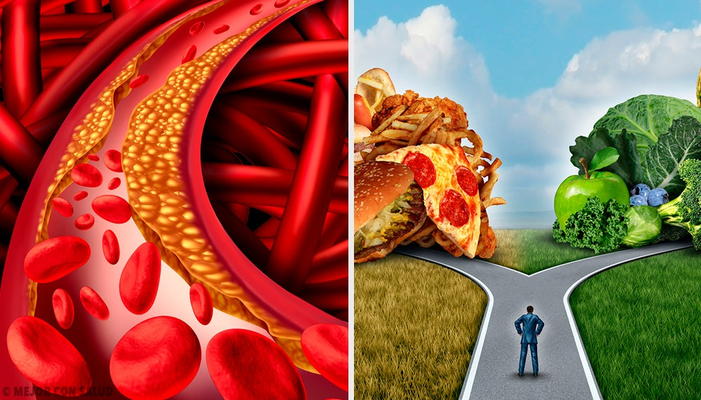 Tratamiento de la aterosclerosis