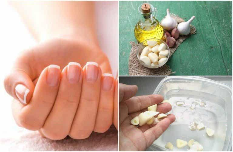 Cómo hacer 5 tratamientos caseros para acelerar el crecimiento de las uñas