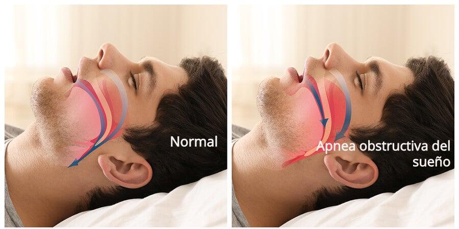 La apnea obstructiva del sueño