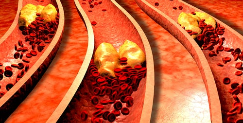 Capa de grasa en las arterias