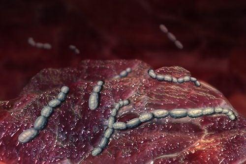 Bacteria que causa la fiebre escarlata.