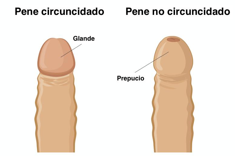 La circuncisión es una medida quirúrjica que sirve para combatir la fimosis