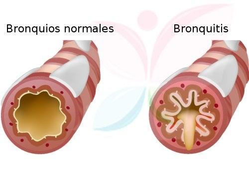 5 remedios efectivos para la bronquitis