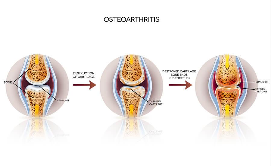Etapas de la osteoartritis.