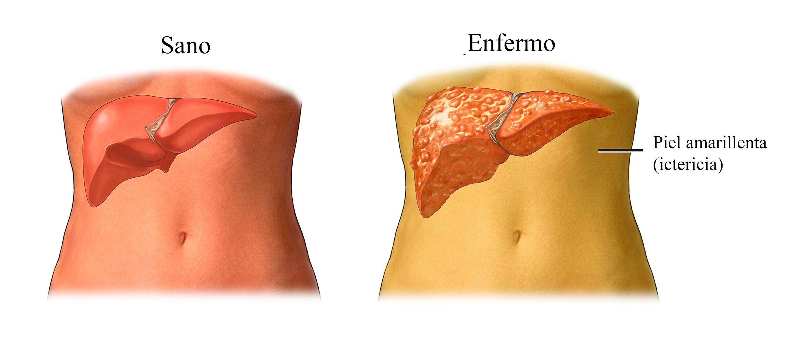 Comparación con un hígado inflamado