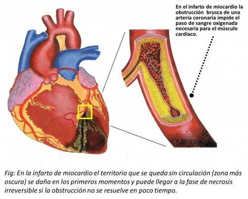 Ilustración del infarto al miocardio