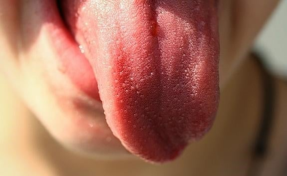 Llagas en la lengua.