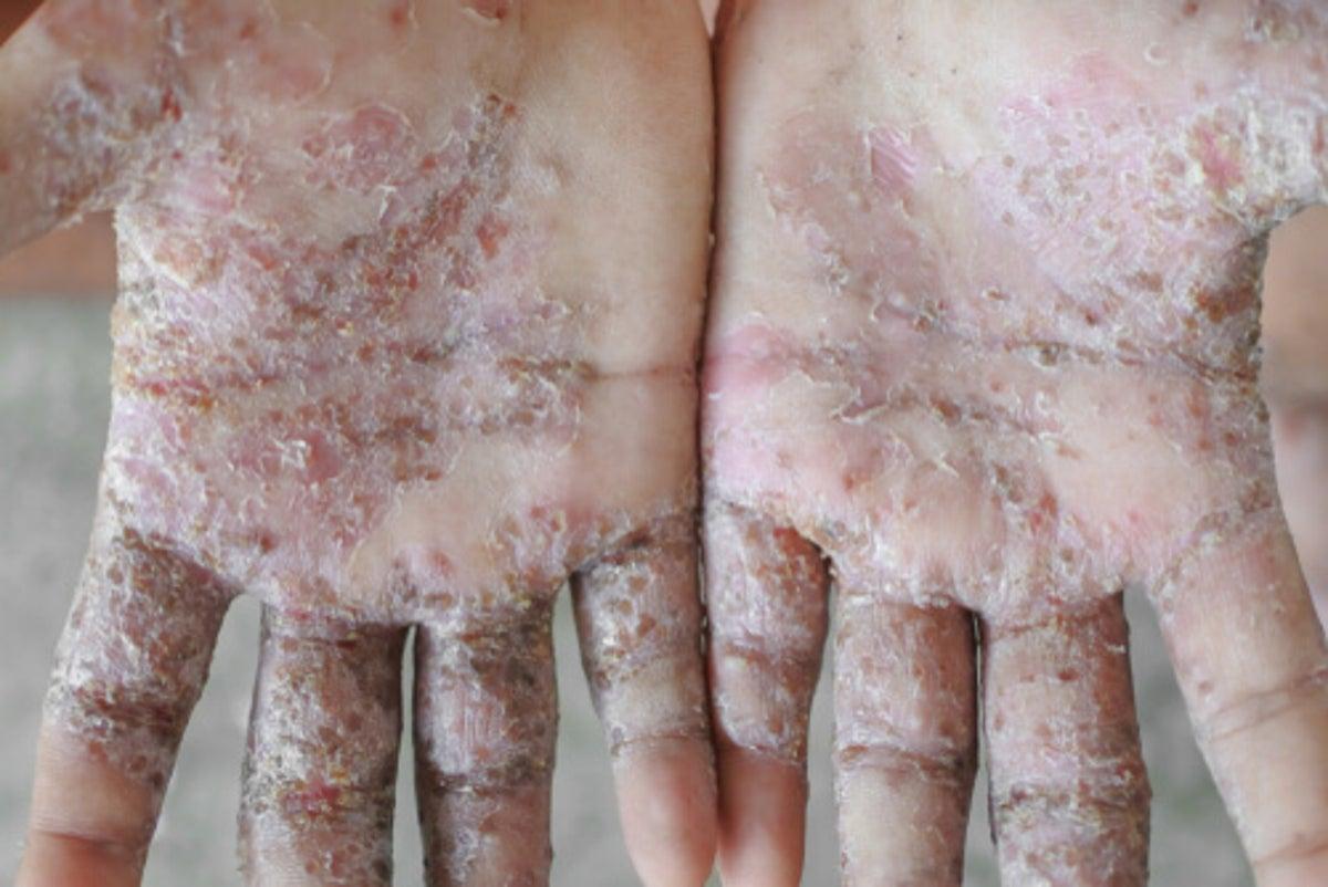 como eliminar acaros de la piel de un bebe