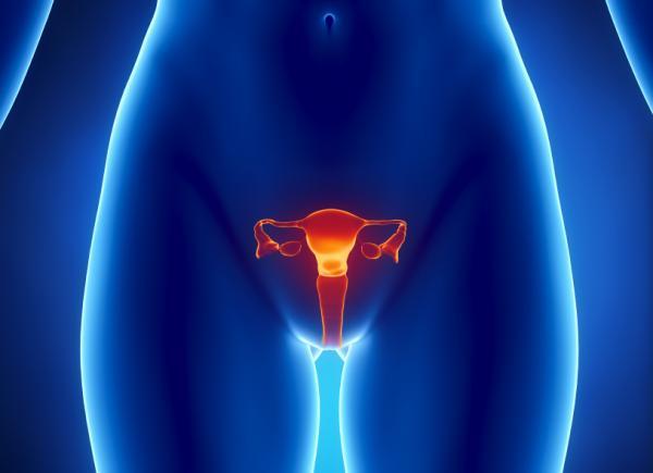 pinchazos ovarios