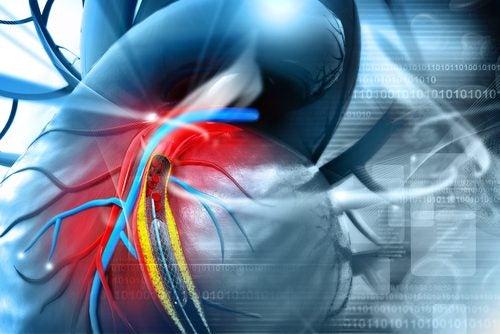 Las placas de ateromas aumentan los riesgos de ataques al corazón