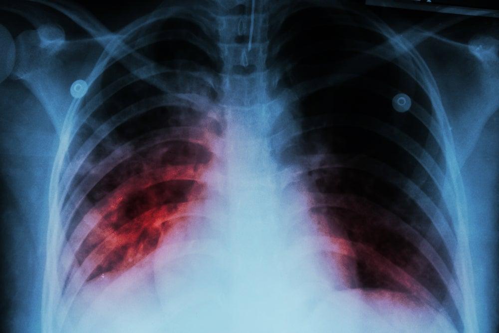 Ejemplo de rayos X para localizar la tuberculosis