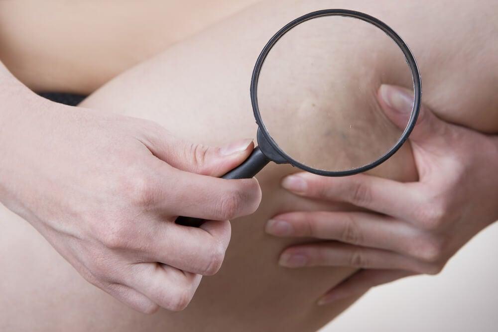 Celulite edematosa