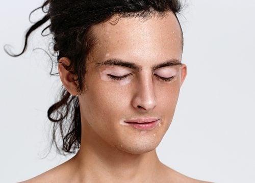Vitiligo en área facial masculina.