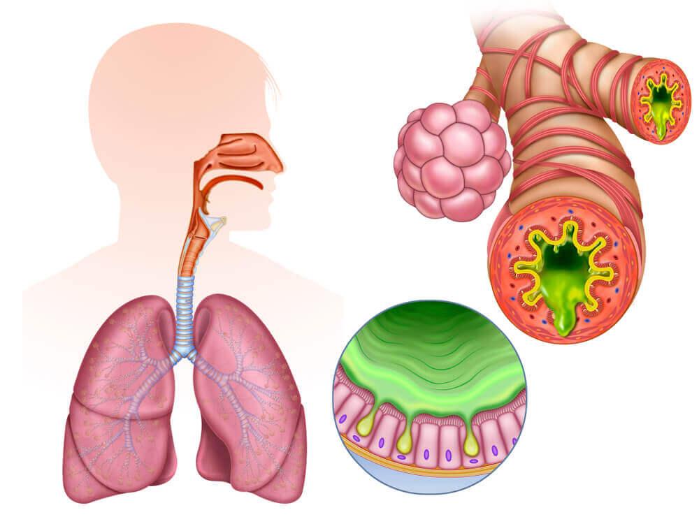 Bronquitis.