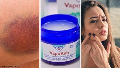 11 usos que no conocías del famoso Vicks VapoRub