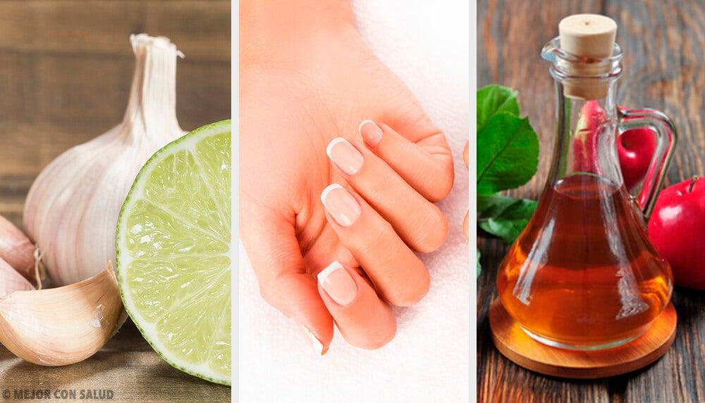 5 remedios para hacer crecer tus uñas