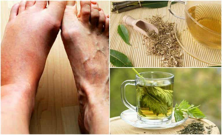 5 remedios caseros para bajar los niveles de ácido úrico