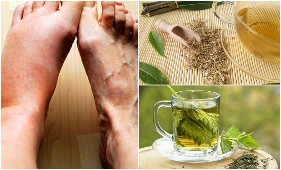 5 Remedios Caseros Para Bajar Los Niveles De ácido úrico Mejor Con Salud