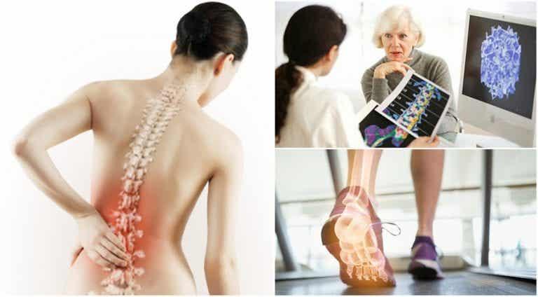 6 cosas sobre la osteoporosis que debes conocer