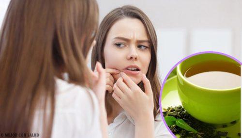 6 formas de emplear el té verde contra el acné