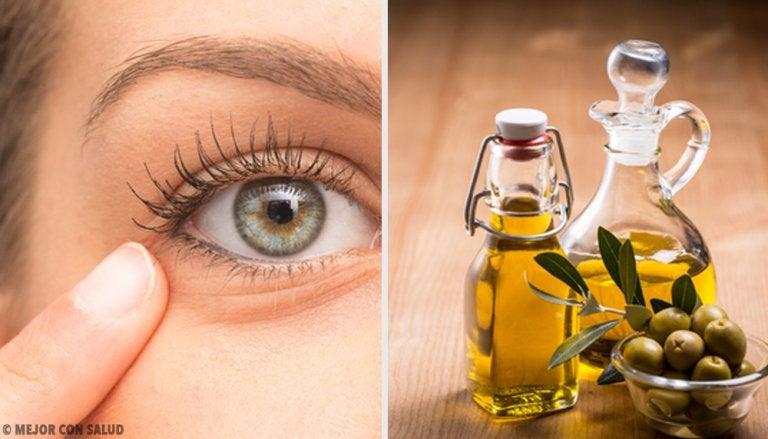 6 remedios naturales contra la inflamación ocular