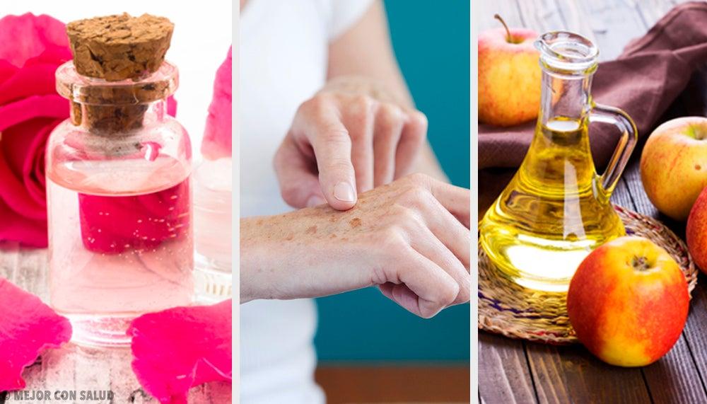 8 remedios naturales para aclarar las manos