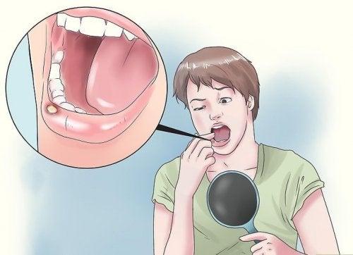 8 remedios naturales para las úlceras en la boca