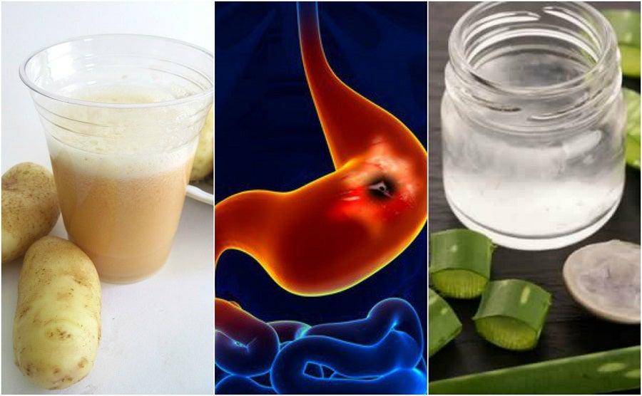 Acelera el alivio de las úlceras estomacales con estos 5 remedios caseros