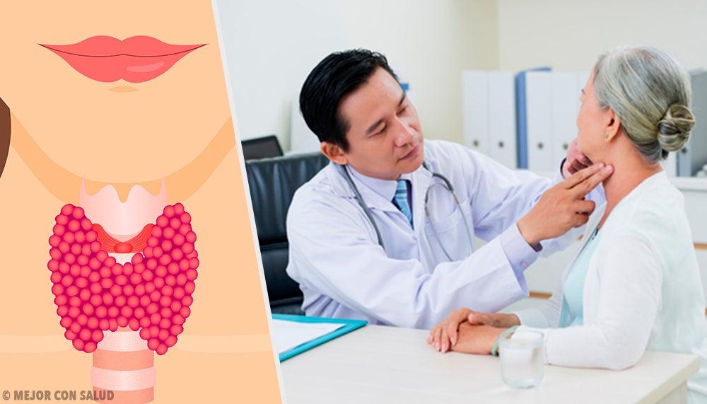 Anatomía de la tiroides – Mejor con Salud