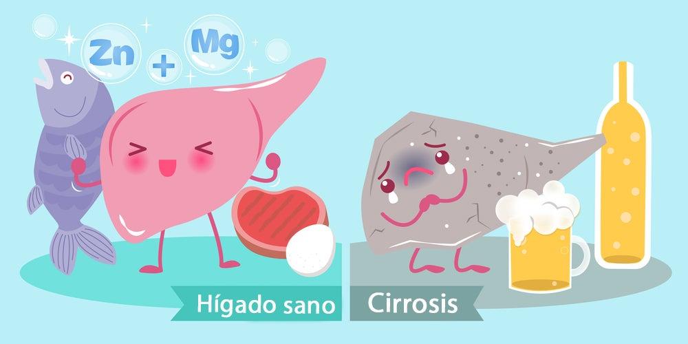 Cómo diagnosticar una cirrosis