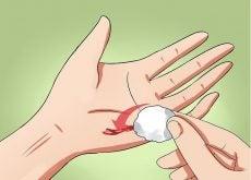 Cómo evitar que se infecte una herida