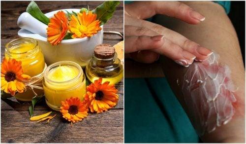 Cómo preparar una crema de aloe vera y caléndula para calmar las quemaduras