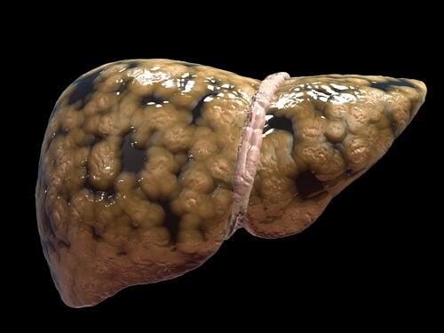 Características de la esteatosis hepática