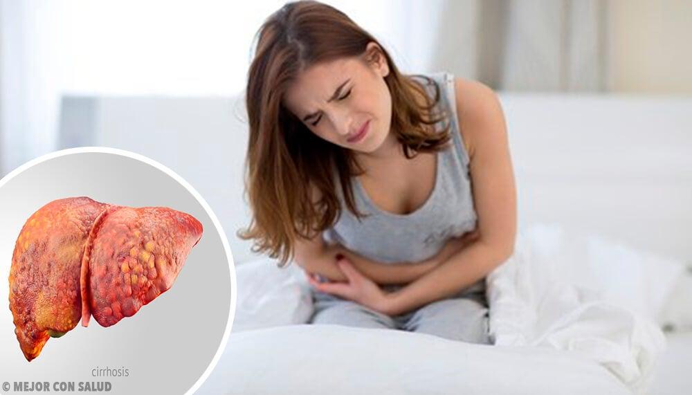 Cirrosis hepática - Mejor con Salud