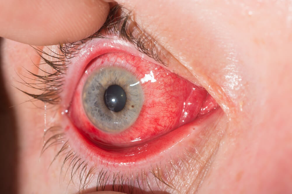 Conjuntivitis alérgicas