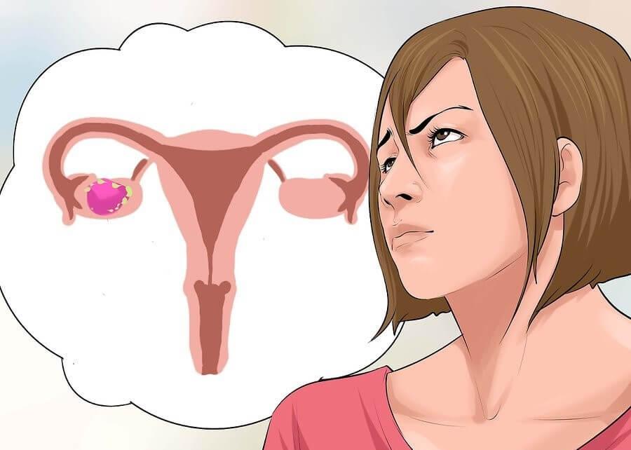 Efectos secundarios del cáncer de ovario