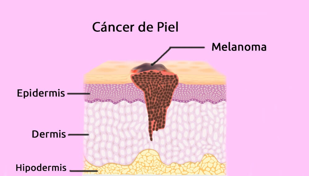 El melanoma