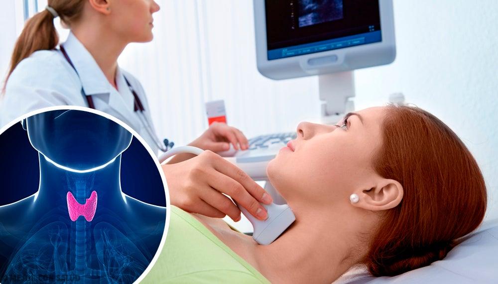 5 Remedios Naturales Para Una Glándula Tiroides Lenta