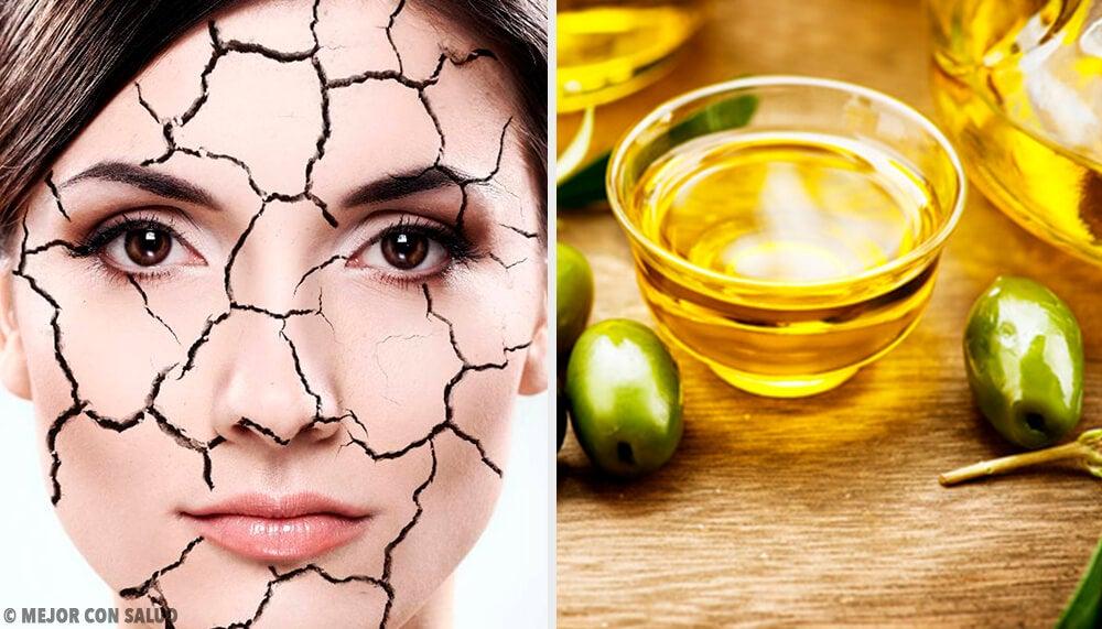 Formas naturales de reducir la resequedad de la piel