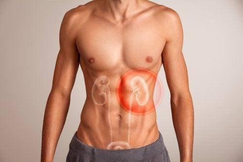Insuficiencia renal aguda con retención de líquidos
