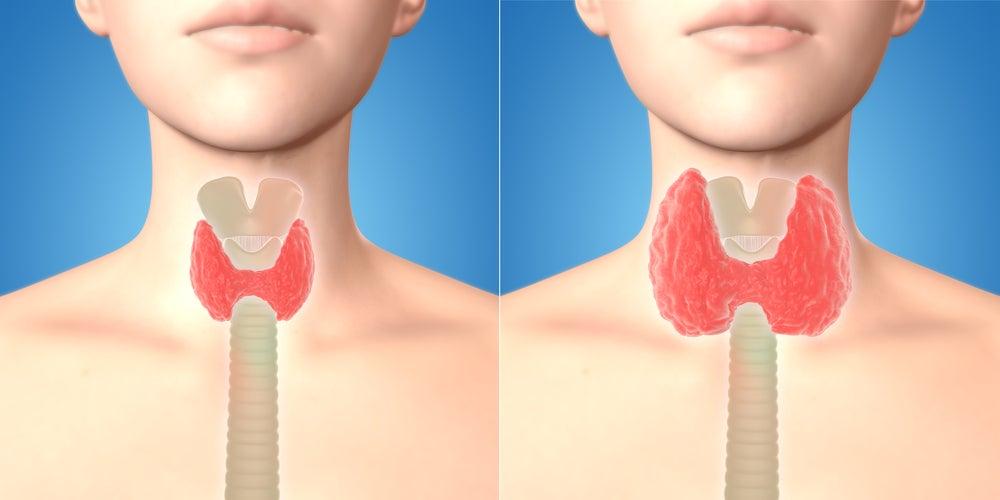 Irrigación e inervación de la tiroides