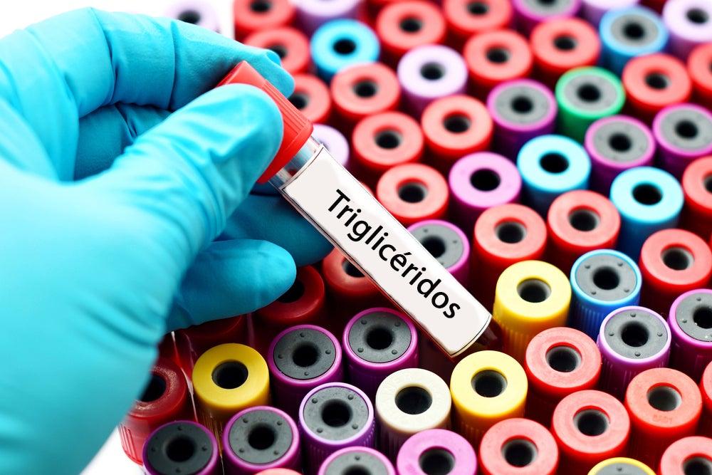 Triglicéridos.